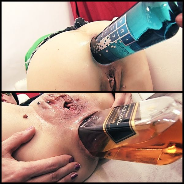 (28.12.2016) Whisky Bottle Anal Insertion – Anal Prolapse ...