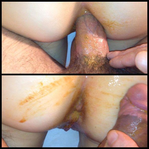 SasiTeen shitty anal