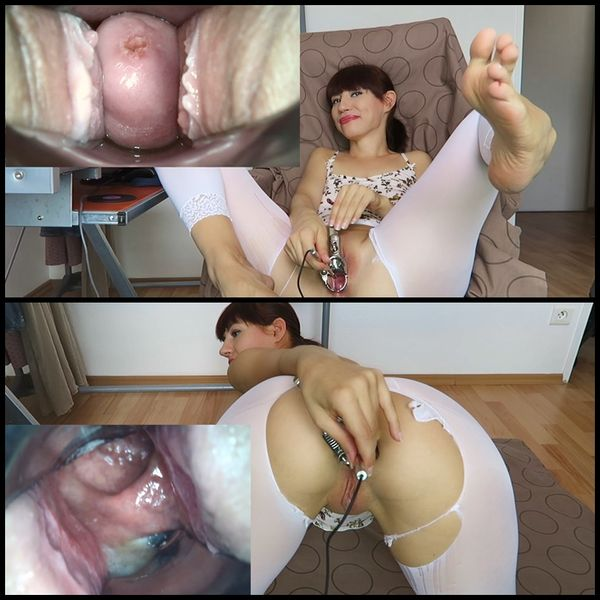 Endoscope test. Cervix, rectum hot views | Full HD 1080p | Release Year: August 16, 2017